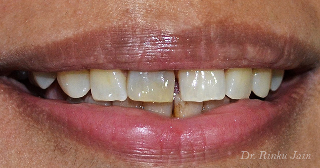 Instant Tooth Whitening Before