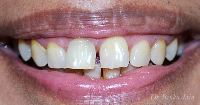 Instant Tooth Whitening After