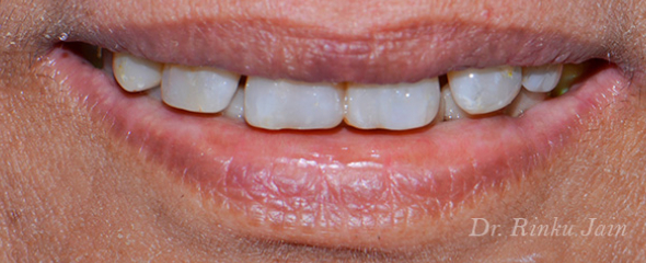 Restored teeth with biom
