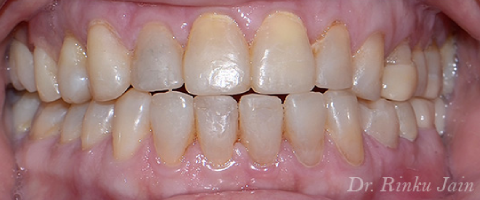 Full mouth restoration after