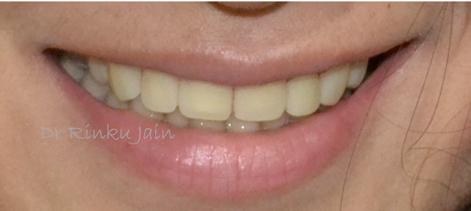 Dental Veneers After
